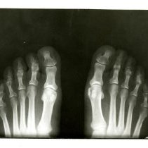 Image of 1993.52 - X-ray of Feet in Shoes