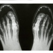 Image of X-ray of Feet in Shoes