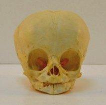 Image of 2006.17 - Human Child's Skull