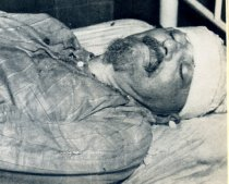 Image of Trotsky in a Mexico City Hospital just after his death