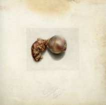 Image of Gallbladder and gallstones - 2009.017.007