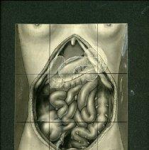 Image of Open Abdominal Cavity - 2009.017.009
