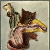 Image of Pancreas and Gall bladder Fistula - Sketches and final ink and gouache renderings of a pancreas and gall bladder fistula. 6 pieces.