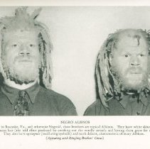 Image of Negro Albinos