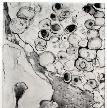 "Image of Microscapes ""Pneumonia"""