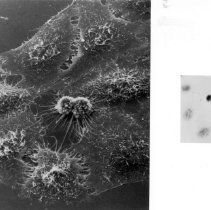 Image of National Cancer Institute - HeLa cells dividing under electron microscopy