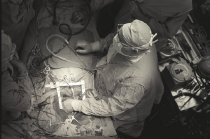 Image of Jerry Hecht Digital Collection - Heart Valve Surgery at the Clinical Center