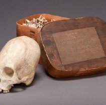 Image of Deformed Skull, with box