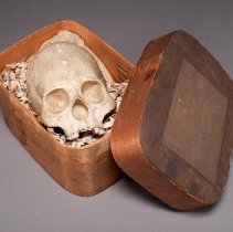 Image of Deformed Skull, in box