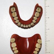 Image of 1940.3.53 - Dentures, Full Upper and Lower