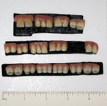 Image of 1940.3.63 - Gum Sectional Teeth, Porcelain