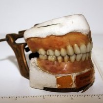 Image of Full Upper and Lower Wax-Up Dentures - Michael Quinn '34