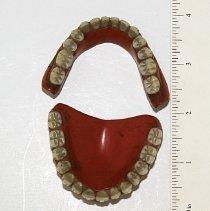 Image of Full Upper & Lower Denture