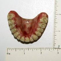 Image of Full Upper Denture