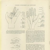 Image of Bunnell's Surgery of the Nerves of the Hand, 2