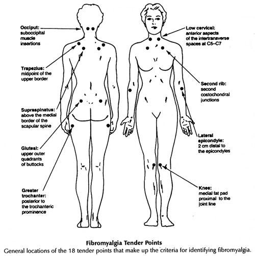 fibromyalgia tender sites
