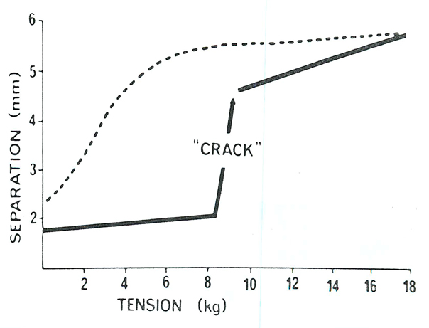 "When the ""crack"" occurred, an immediate and significant increase in joint separation also occurred, from 1-3 mm. (Picture after 1, 2, 5)"