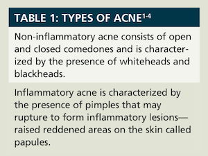 Put Your Best Face Forward: Treatment of Acne Vulgaris