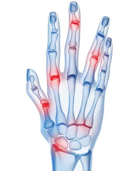 Как лечить деформирующий артроз плеча