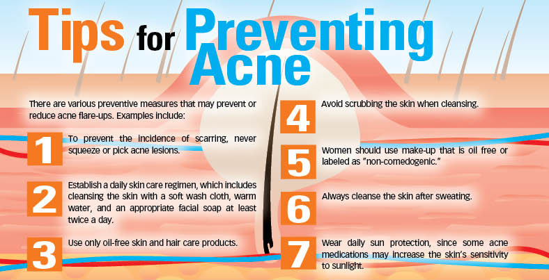 Finding the Right Treatment for Managing Your Acne