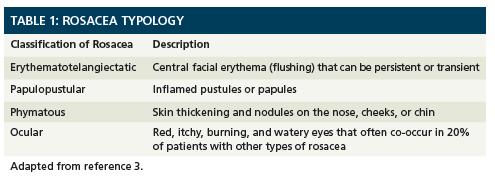 Rosacea Treatment Prescription
