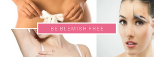 BeBlemishFree.Com image