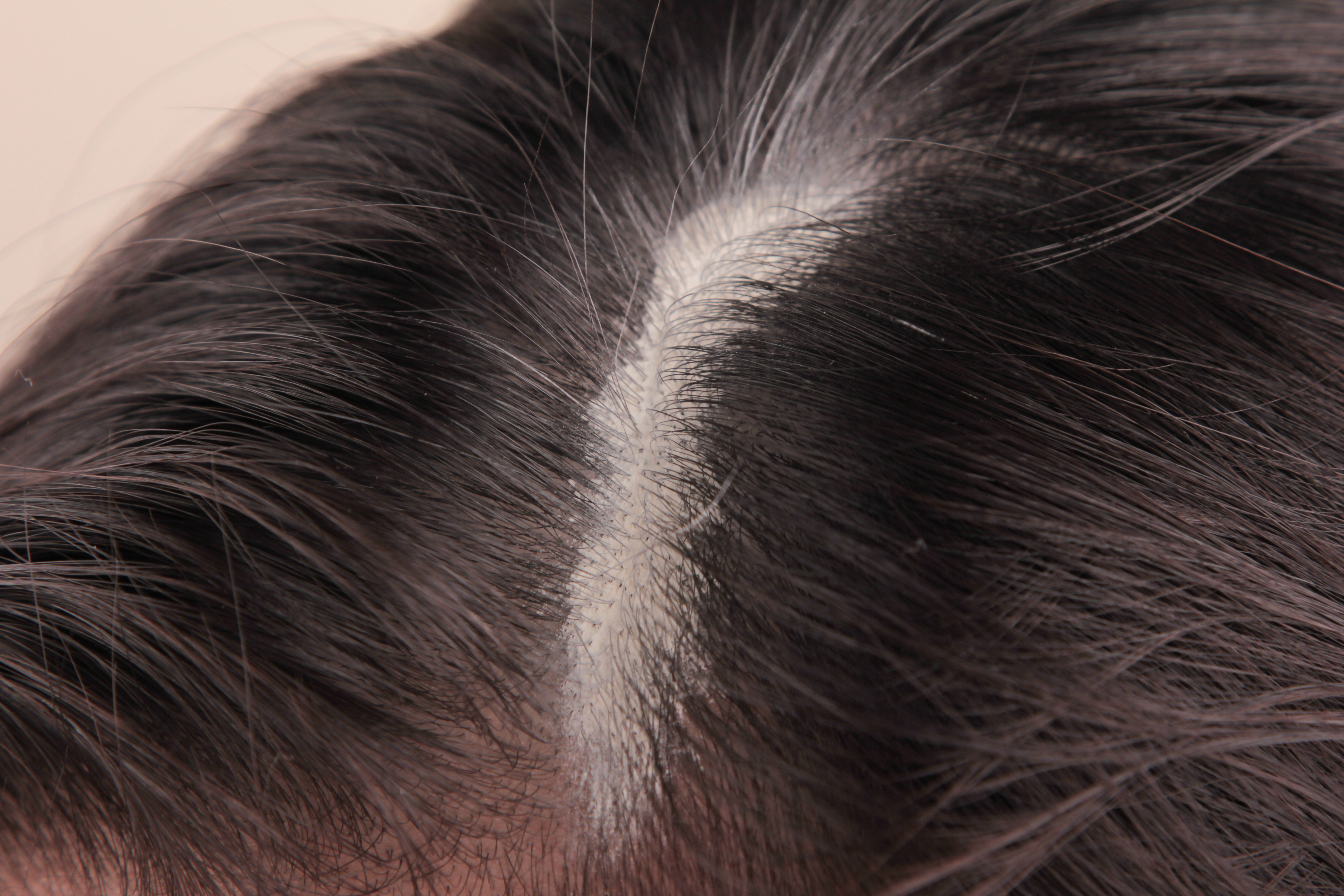 How to Clean Sebum From the Scalp   LIVESTRONG.COM