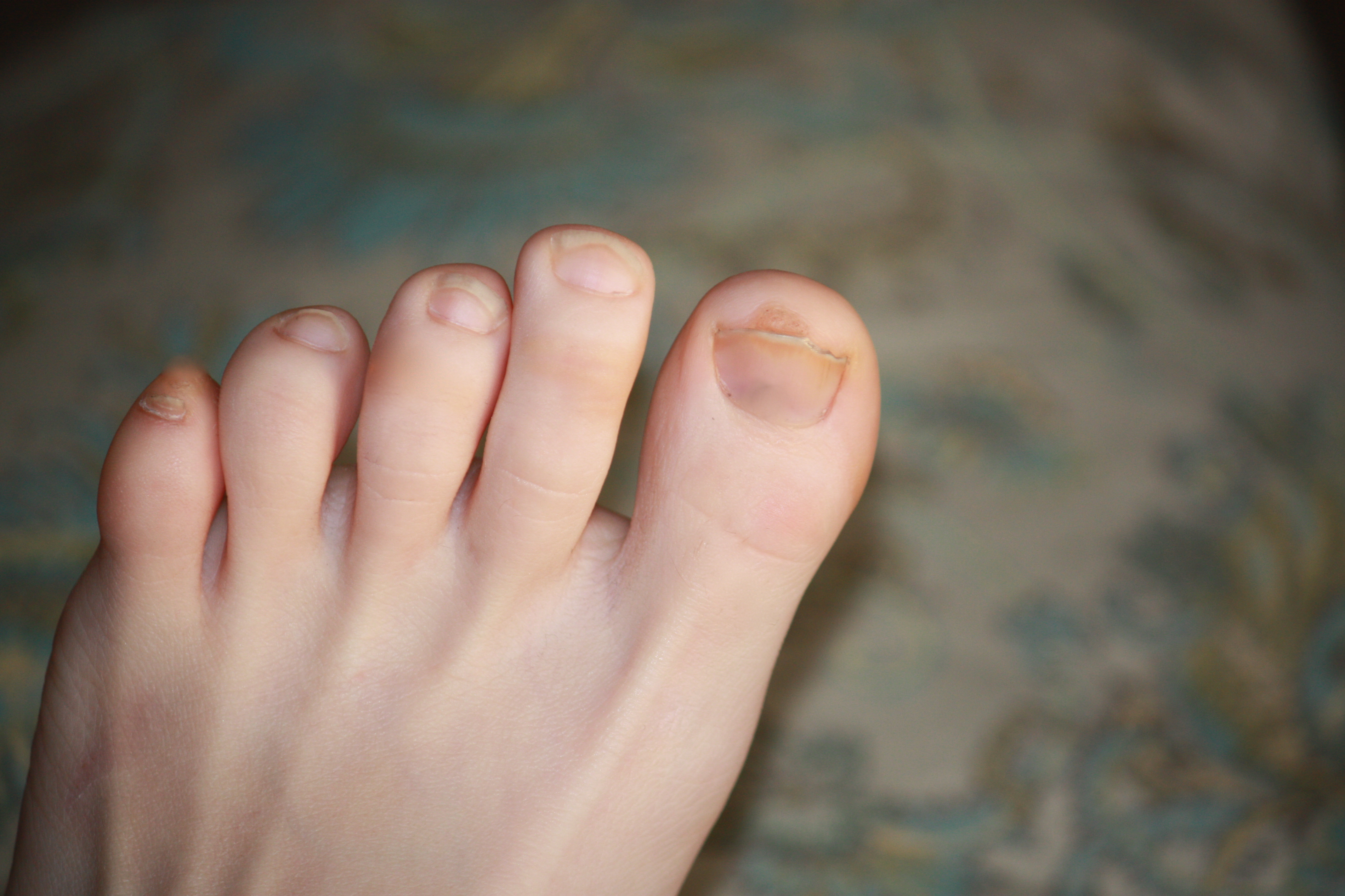How to Clear Up Dark Toenails | LEAFtv