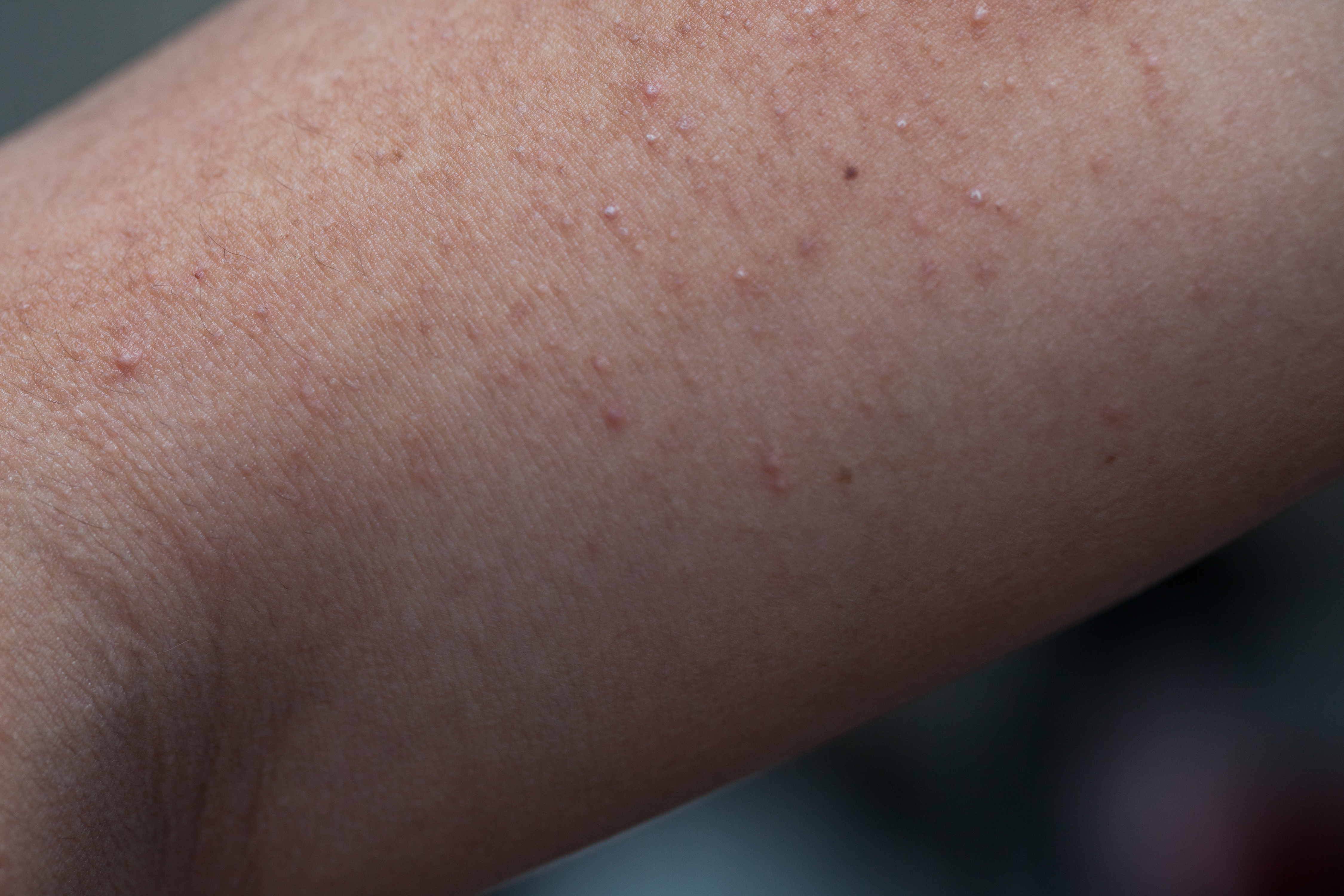 Bactrim to Treat Acne