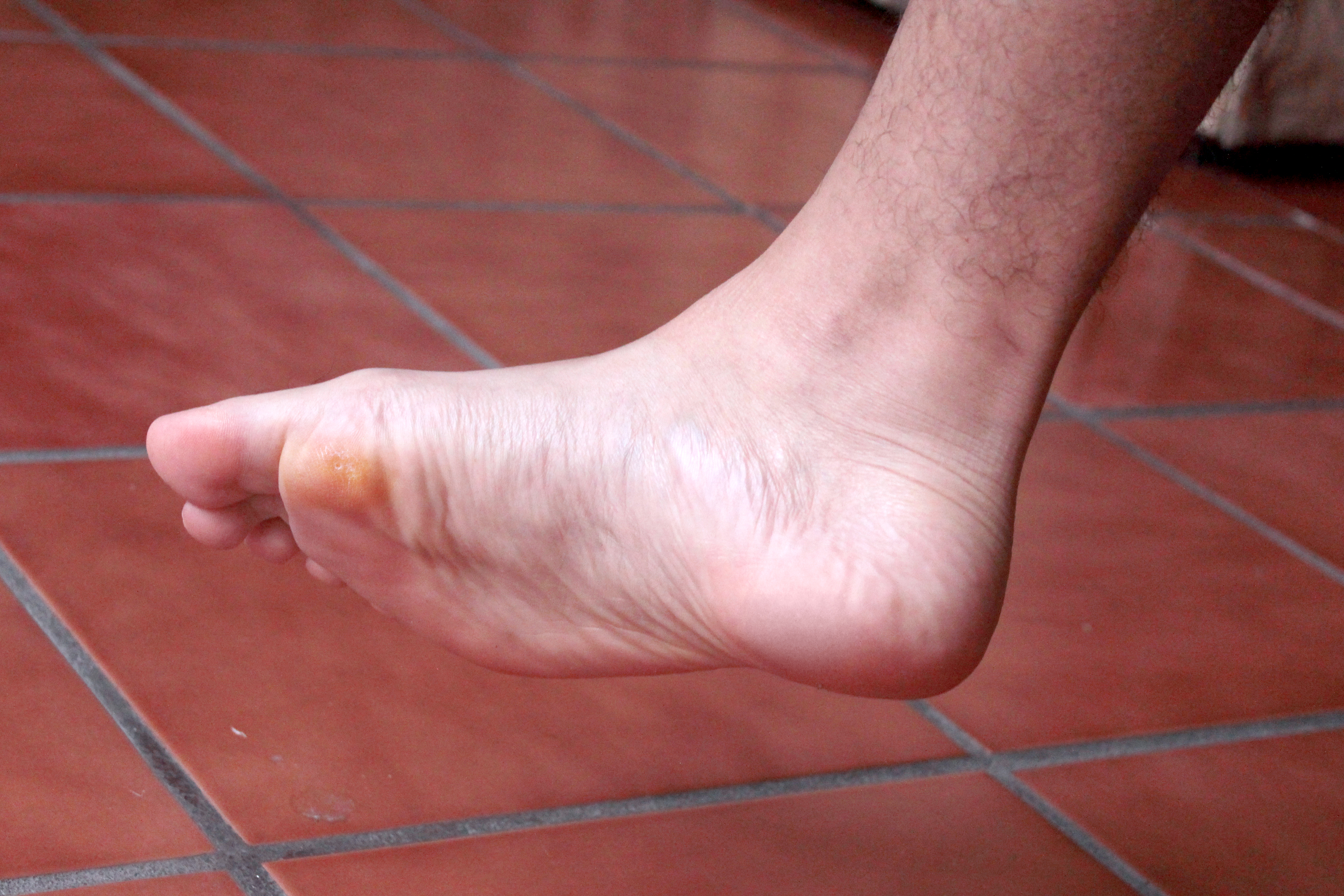 Detox Foot Patches Side Effects Leaftv