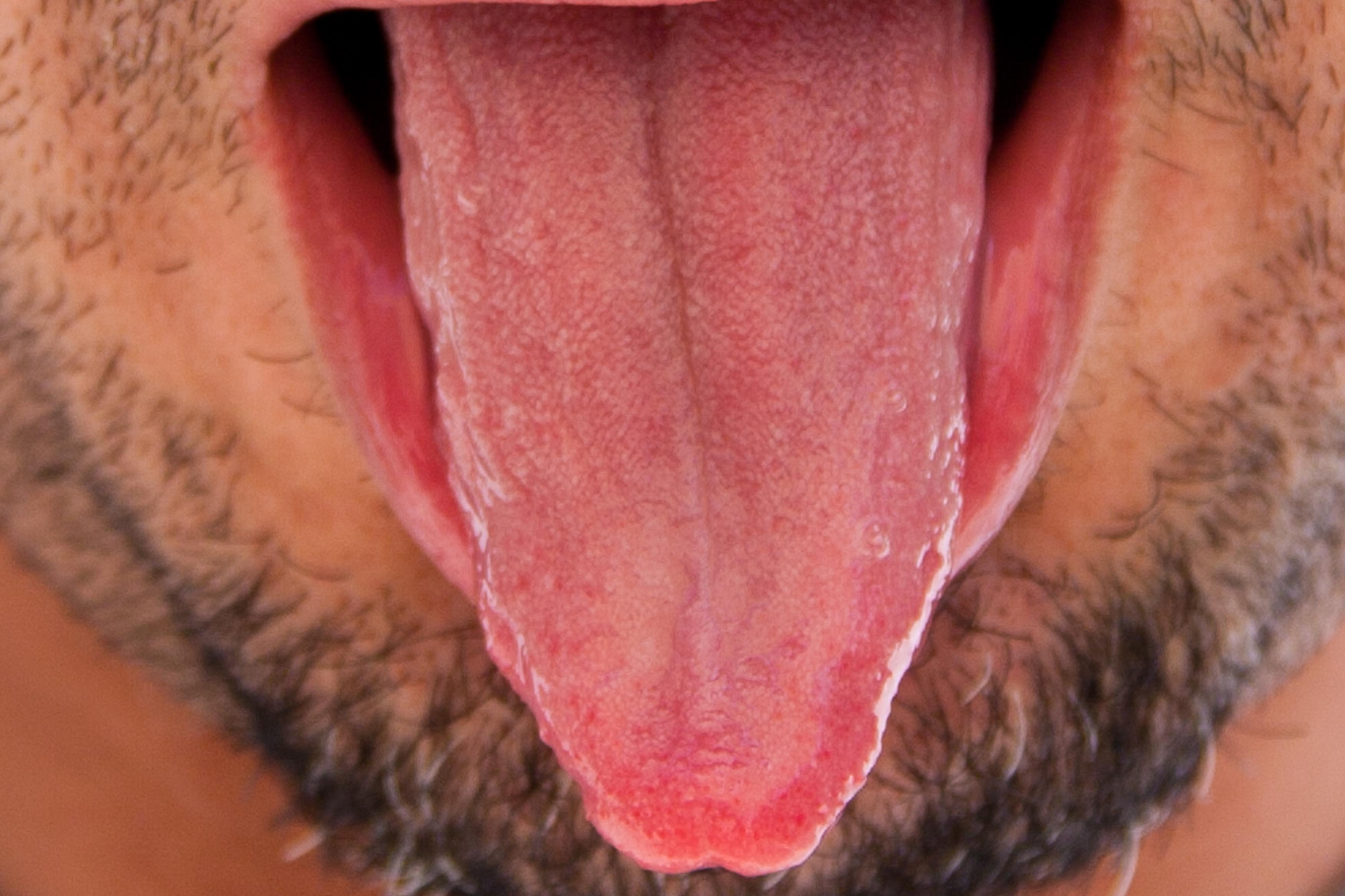 Pimple-Like Bumps on the Tongue