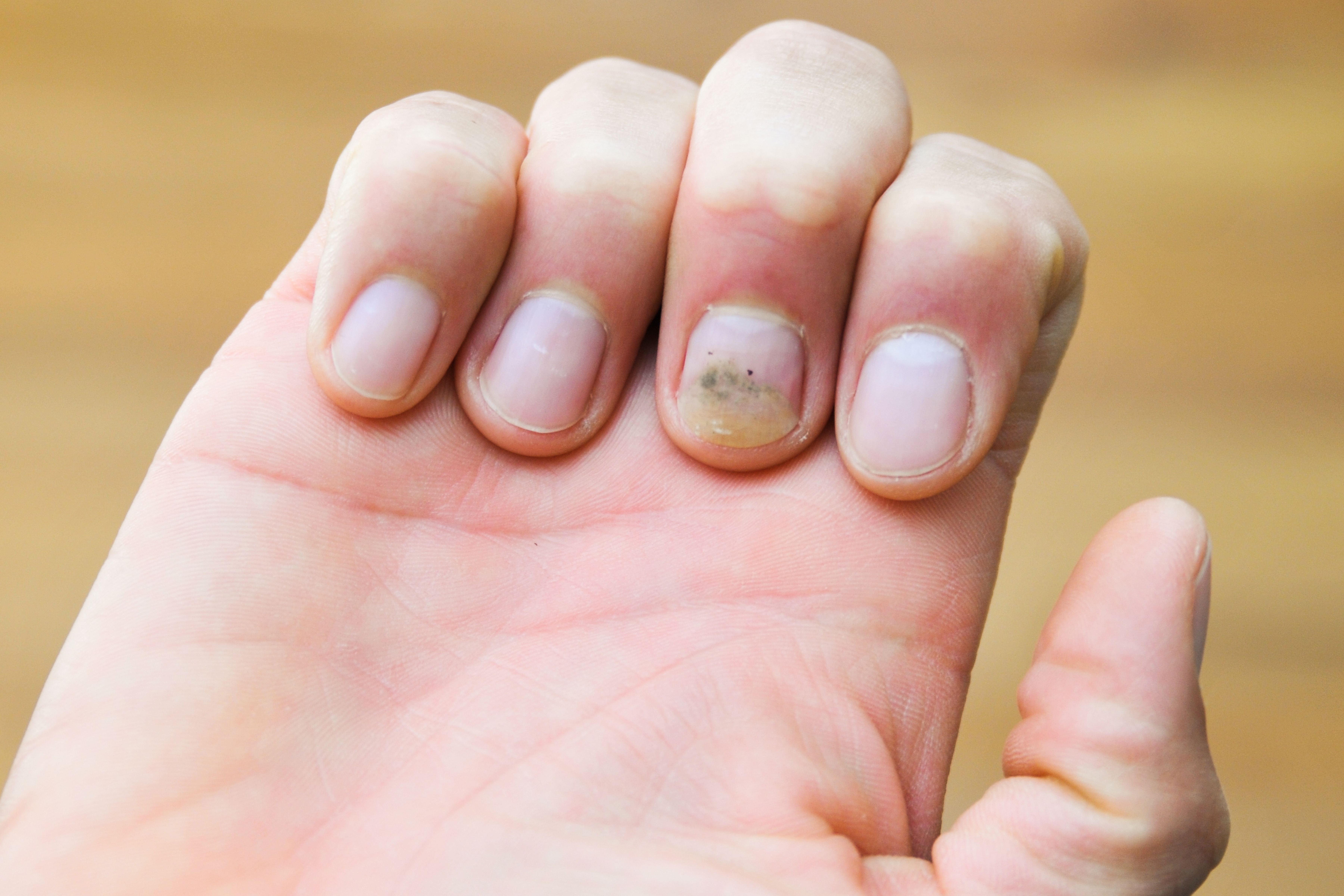 How Do I Get Yellow Stains Out Of My Nails