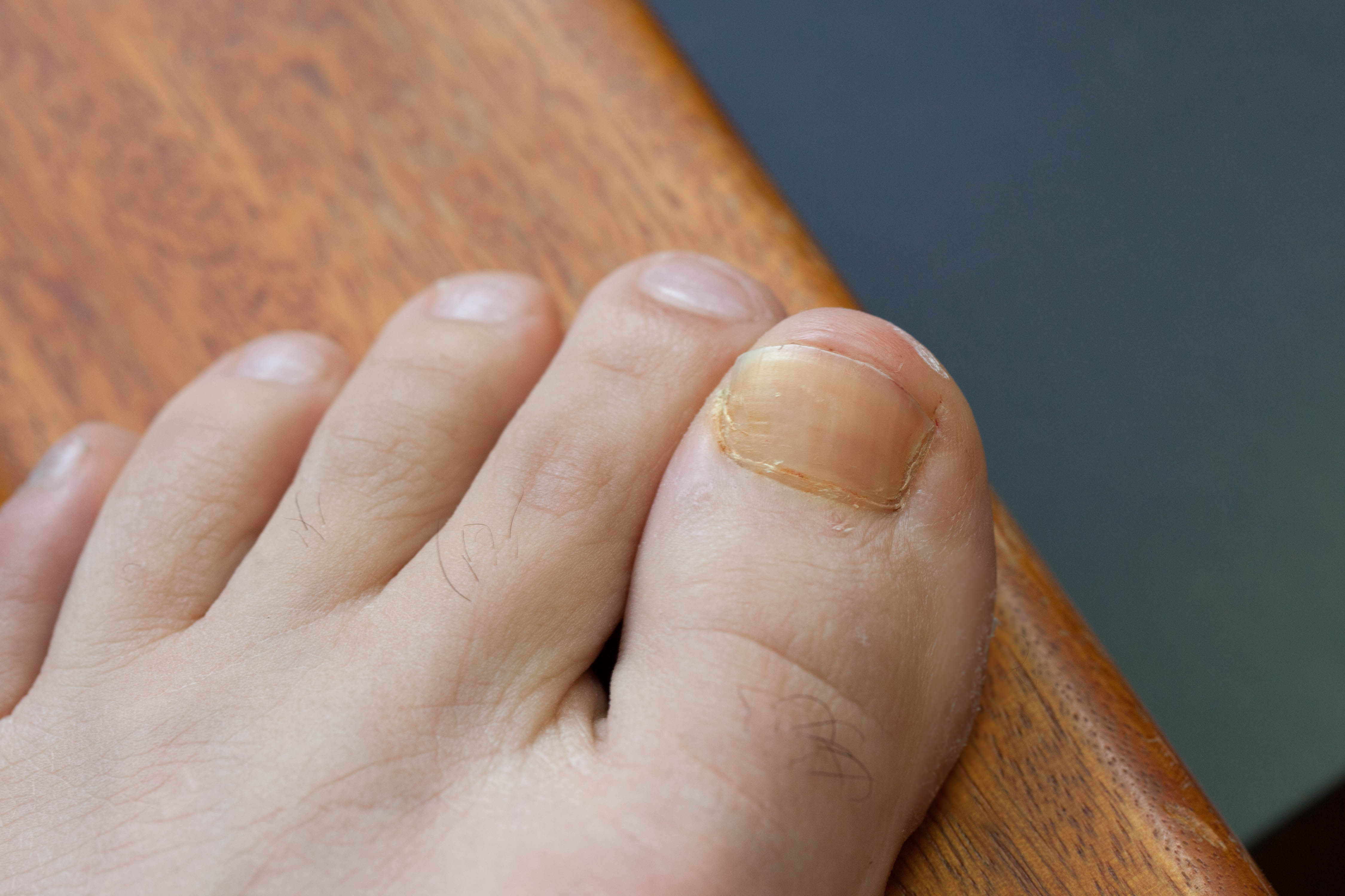 How to Get Rid of Brown Toenails   LEAFtv