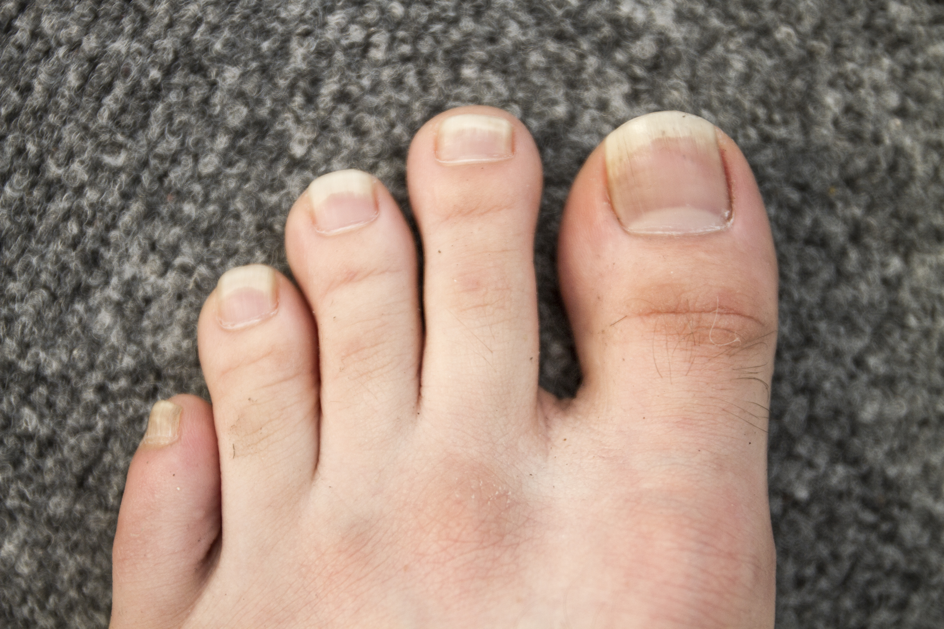 how to get rid of black spots on toe nails