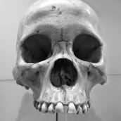 Skull Boerhaave Museum Leiden 3D