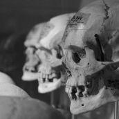 Skulls Boerhaave Leiden 3D