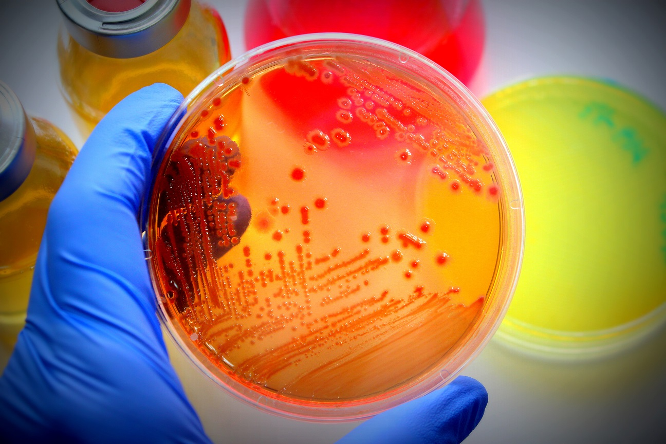 Let's talk about biosafety.: Microbial Pure Culture