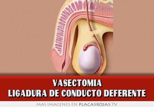 Vasectomia ligadura de conducto deferente - Placas Rojas TV