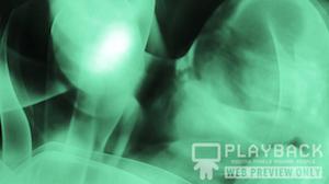 X-Ray Still Background