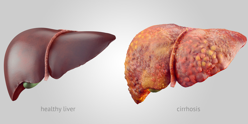 Roundup: A new environmental risk factor for liver disease