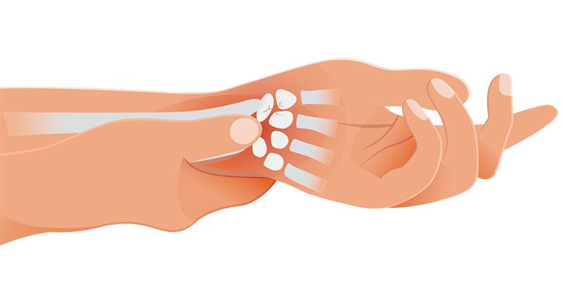 Você sabe o que são lesões por Esforço repetitivo?
