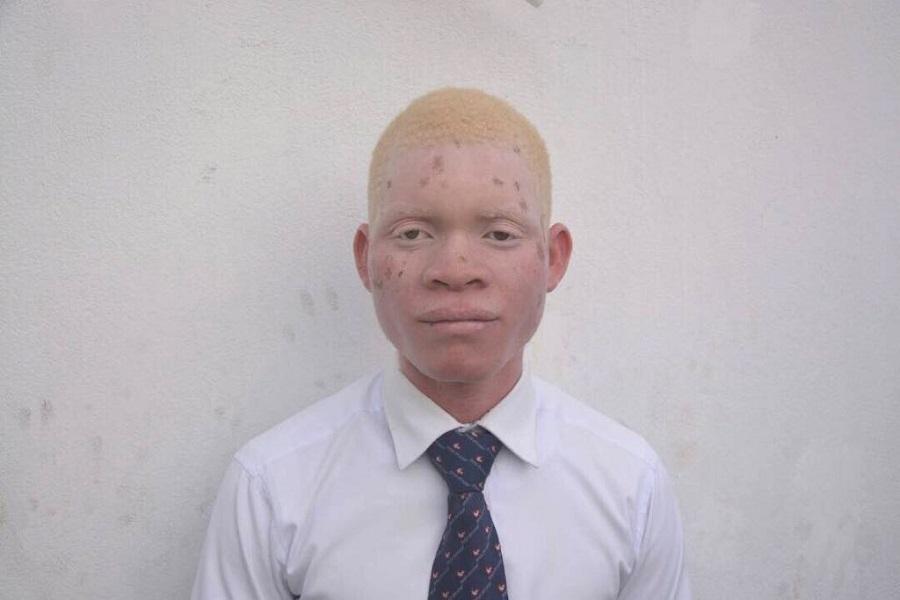 Universal em Moçambique ajuda albinos