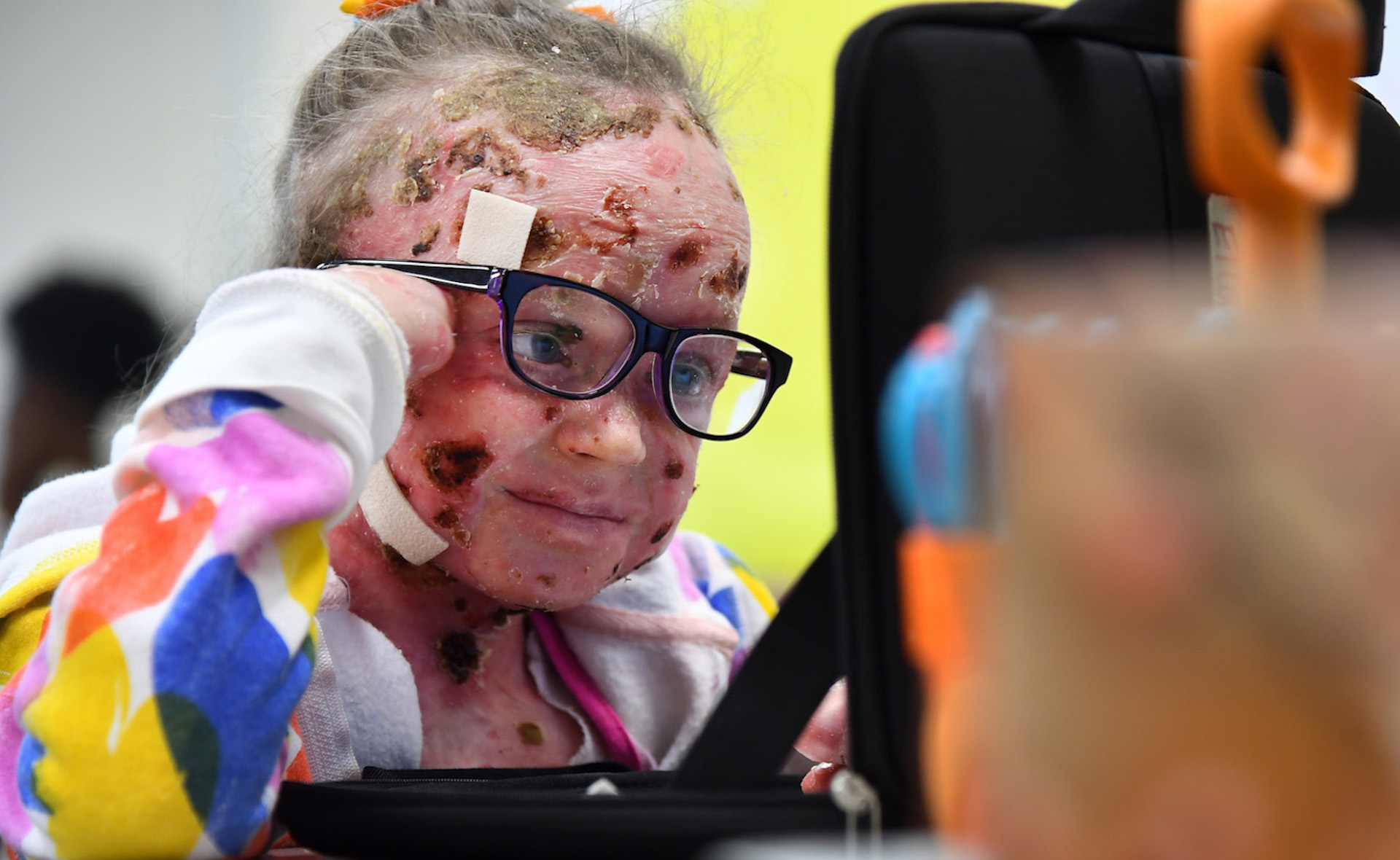 a baby girl a baffling disease and the only way to help her is to