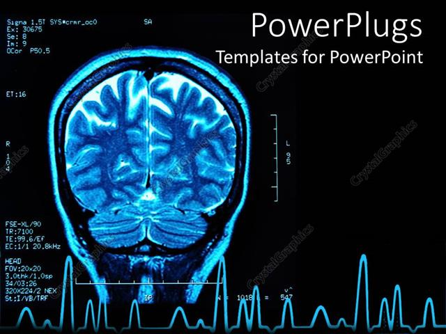 Powerpoint template blue brain mri black background brain scan 4012 powerpoint template displaying blue brain mri black background brain scan toneelgroepblik Images