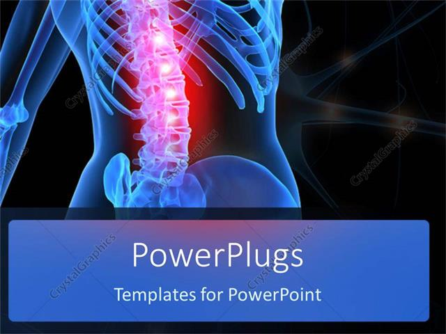 Powerpoint template human anatomy showing inflamed spinal column powerpoint template displaying human anatomy showing inflamed spinal column toneelgroepblik Images