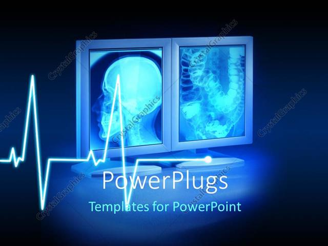 Powerpoint template large x rays viewed on hospital high end powerpoint template displaying large x rays viewed on hospital high end monitors with ecg wave in toneelgroepblik Image collections