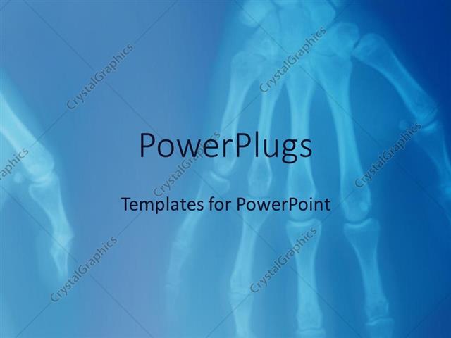 Powerpoint template x ray of human hands showing skeleton of hand powerpoint template displaying x ray of human hands showing skeleton of hand fingers toneelgroepblik Image collections