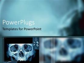 Presentation design having digital x ray of skull