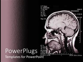 Presentation theme featuring magnetic Resonance Angiogram image of a brain on a dark background