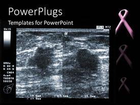 Slide deck enhanced with ultrasound depiction of breast tumor with breast fighting pink ribbon